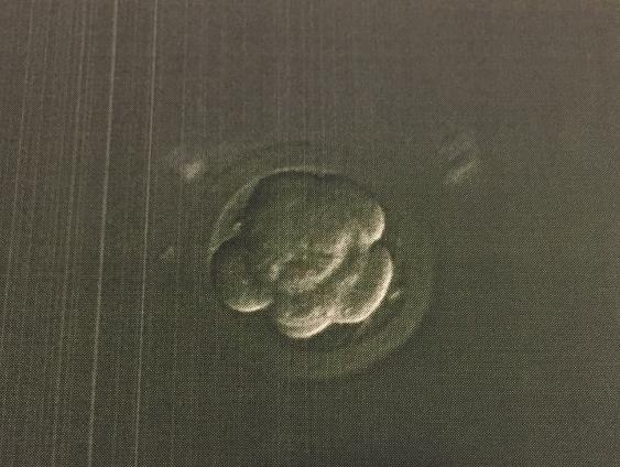 【体外受精1周期目】18,  受精後5~6日目、残りは胚盤胞になったか?D22